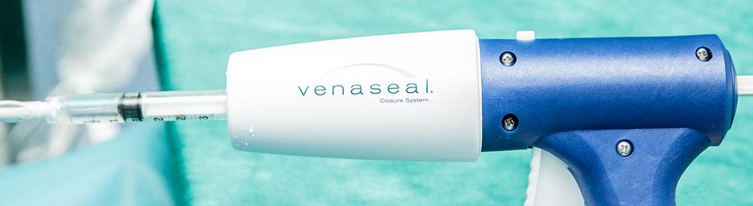 300 - Usuwanie żylaków metodą Venaseal w H-T. Centrum
